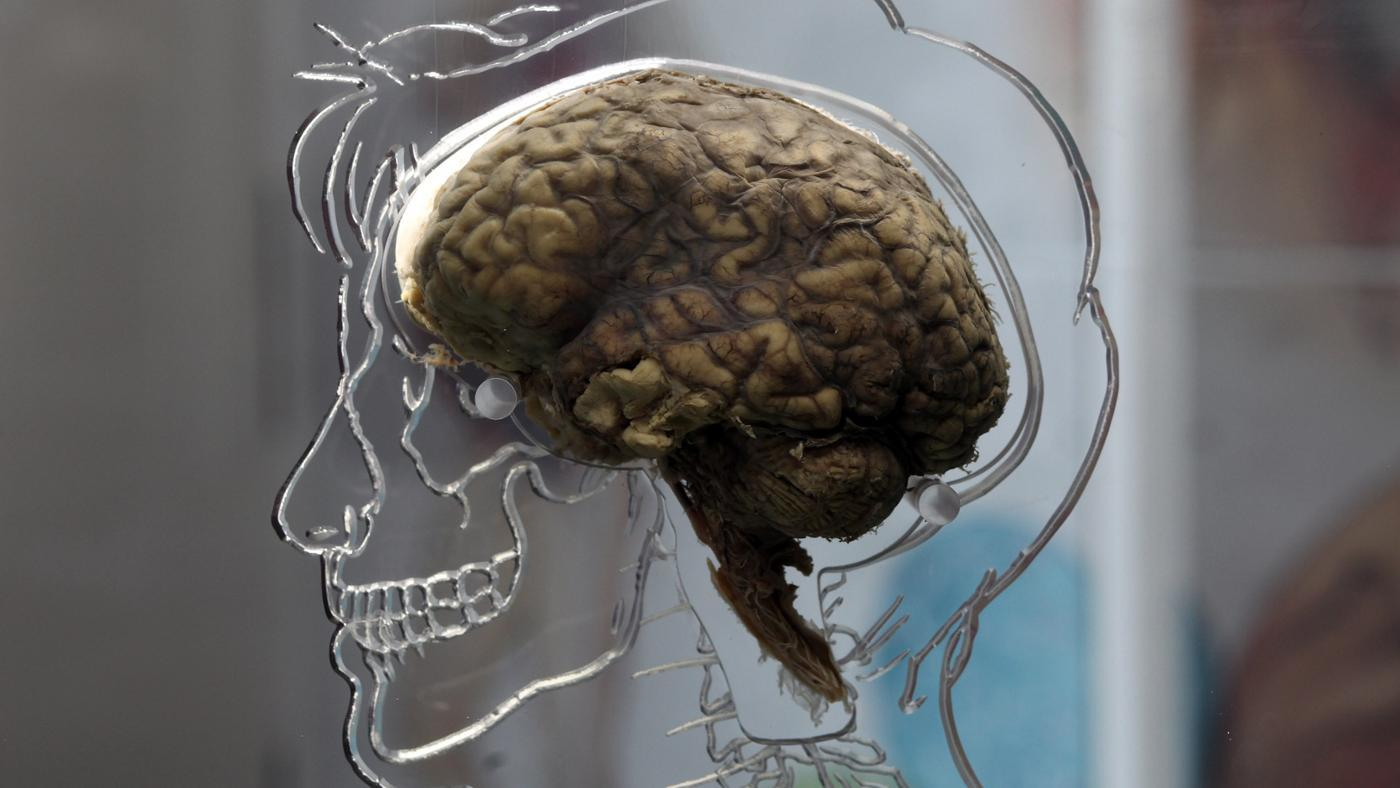 Why Do Psychologists Study the Brain and the Nervous System?