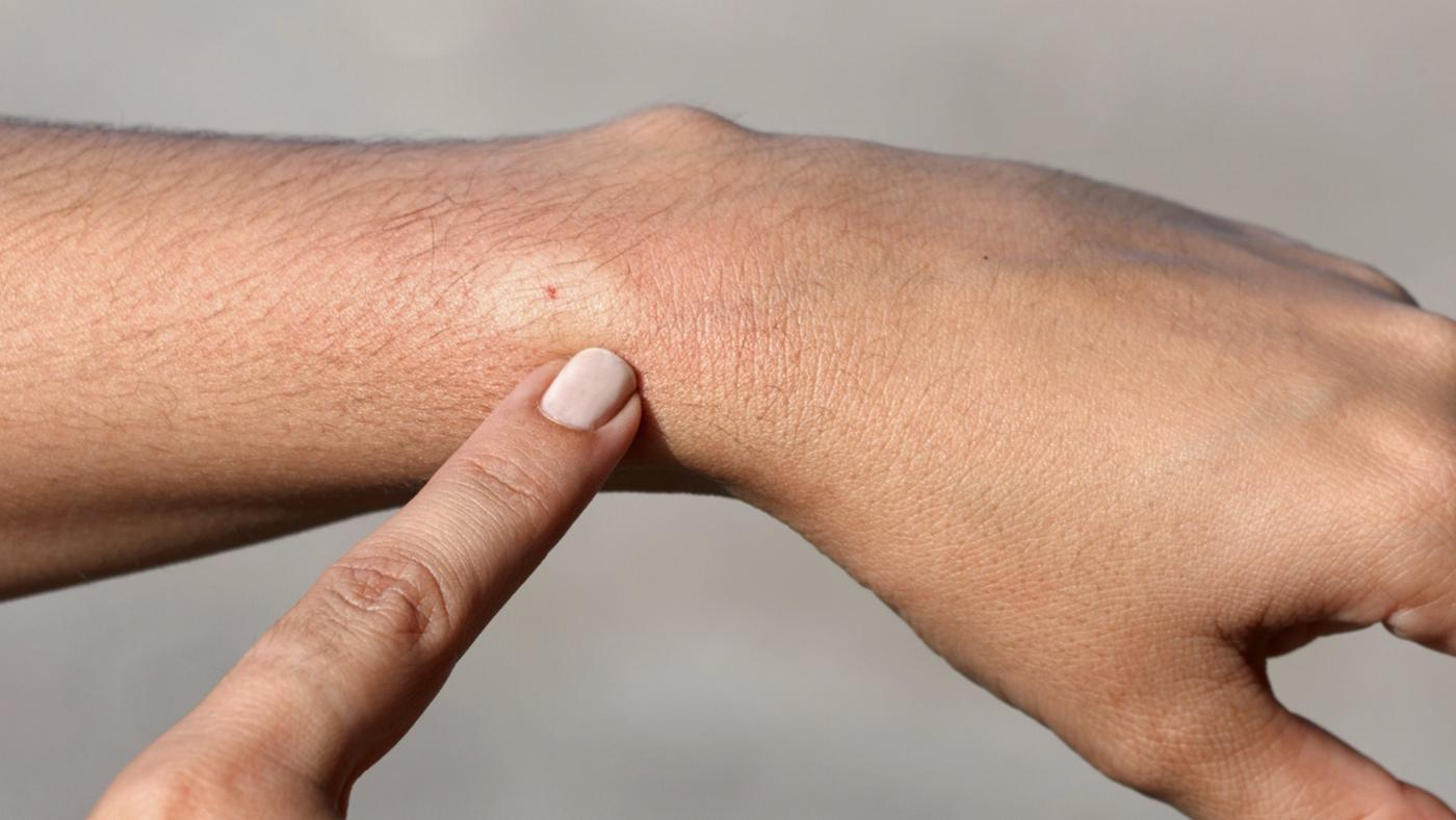 How Do You Treat a Bee Sting?