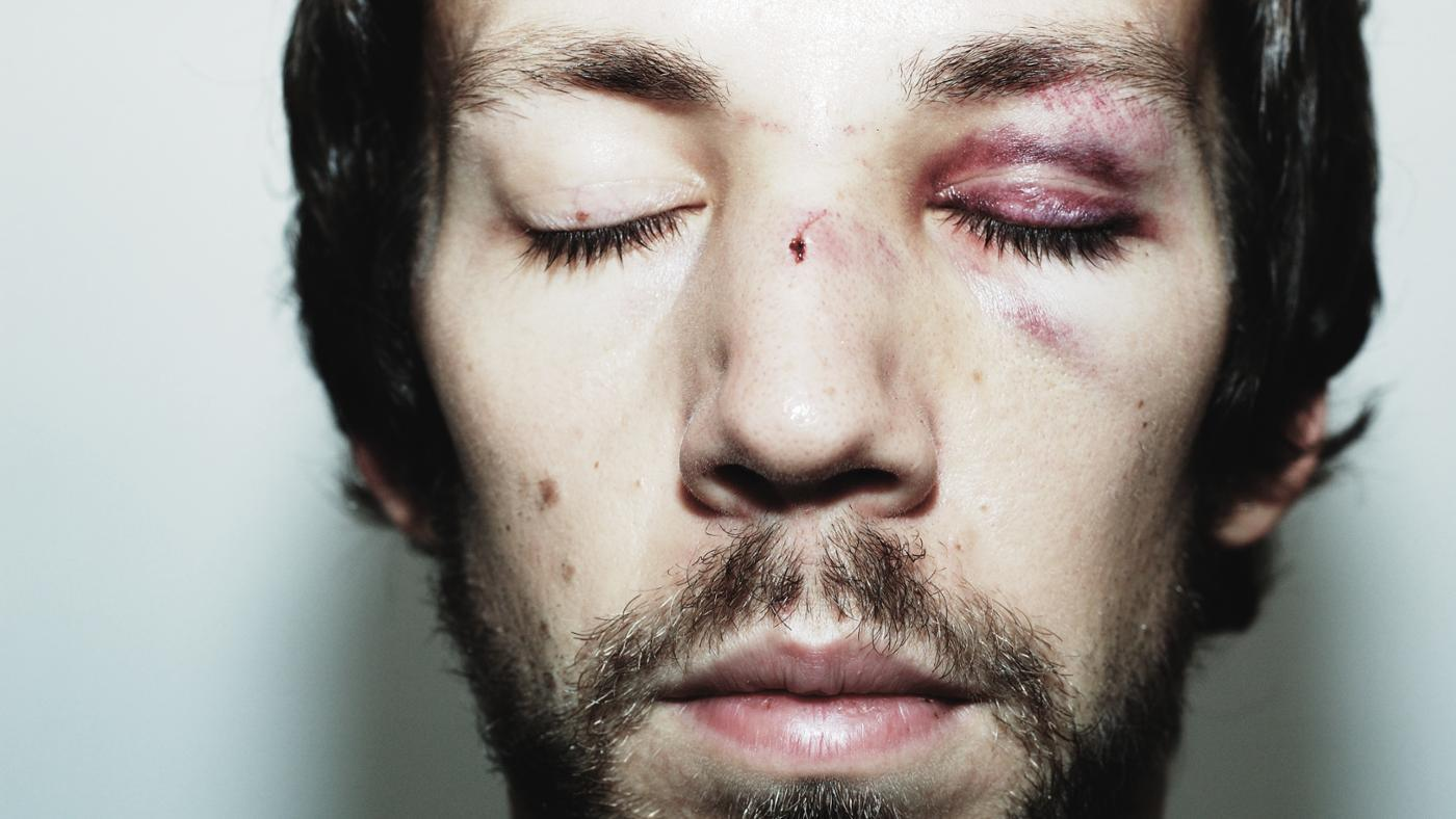 How Do You Get Wounds on the Face to Heal Faster?