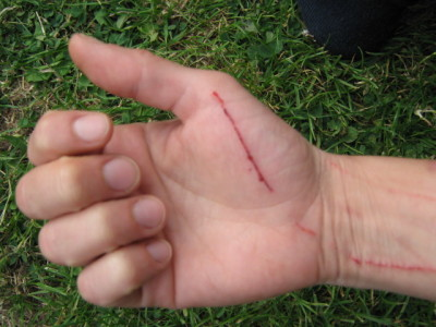 You Can Do These 4 Essential Steps to Treat Rabbit Scratches at Home