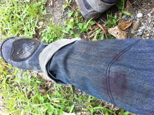 Blood stains through the double-layer jeans.