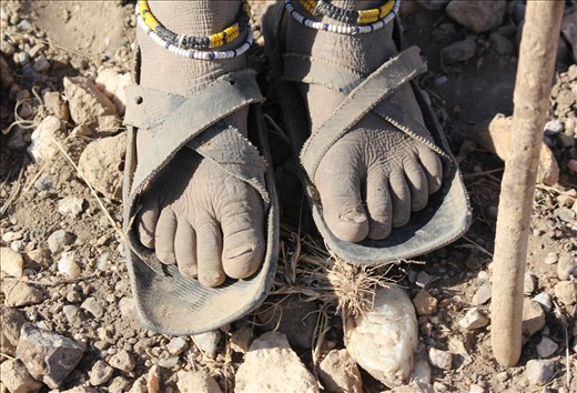 The weathered feet of of a Masai girl. This photo represents the harsh reality of nomadic life.