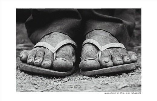 Coffee Feet - Works in the coffee harvest twenty-two years(Manoel José da Silva)