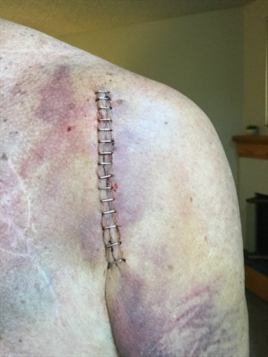 Staples, not stitches, added to the old scars