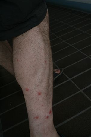 At various times throughout the night I was brutally attacked.  I woke with blood streaming from my legs.
