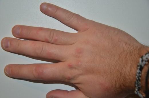 Tim's Hand