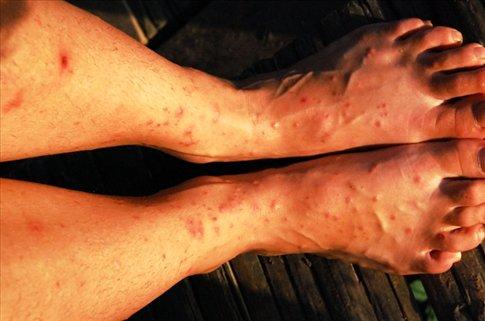 Damn mosquitoes!!