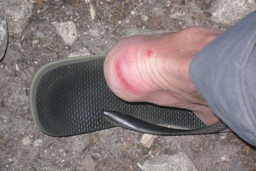 Brett's blister