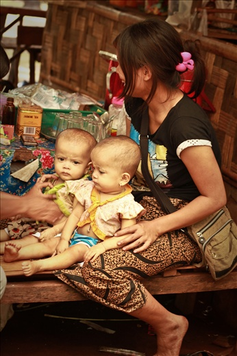 Deformed twins because of mother's malnutrition