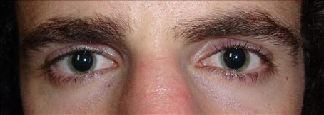 My pupils wide open after a visit to the LASIK centre and having drops put in my eyes. I was unable tobear bright light for hours afterwards.