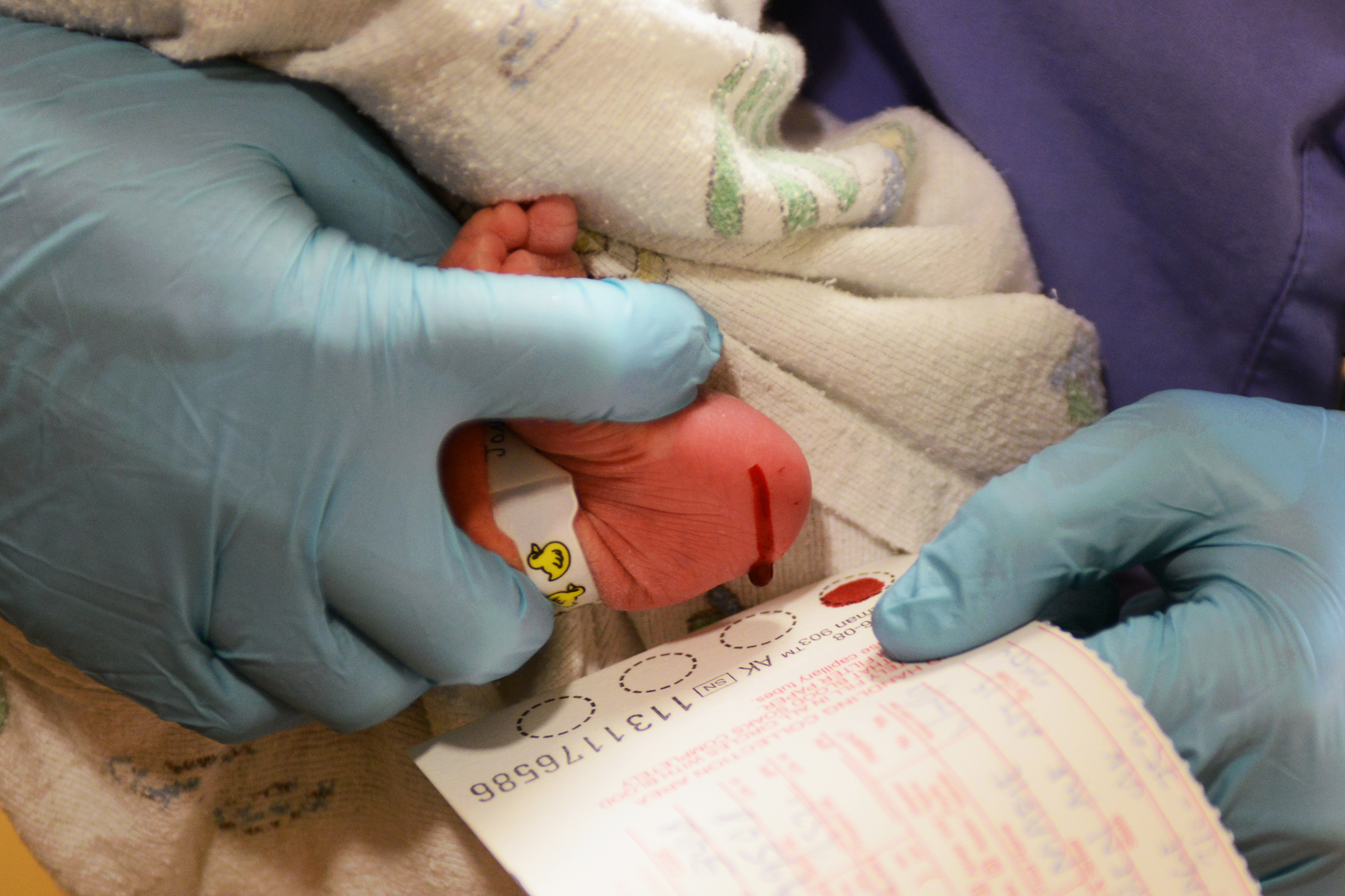 Blood samples are taken from a one-day-old infant in November of 2014 at Alaska Native Medical Center. The blood was drawn for screening for numerous conditions including CPT1A, which occurs in some Alaska Native people and other Arctic indigenous people. (Erik Hill / ADN archive 2014)