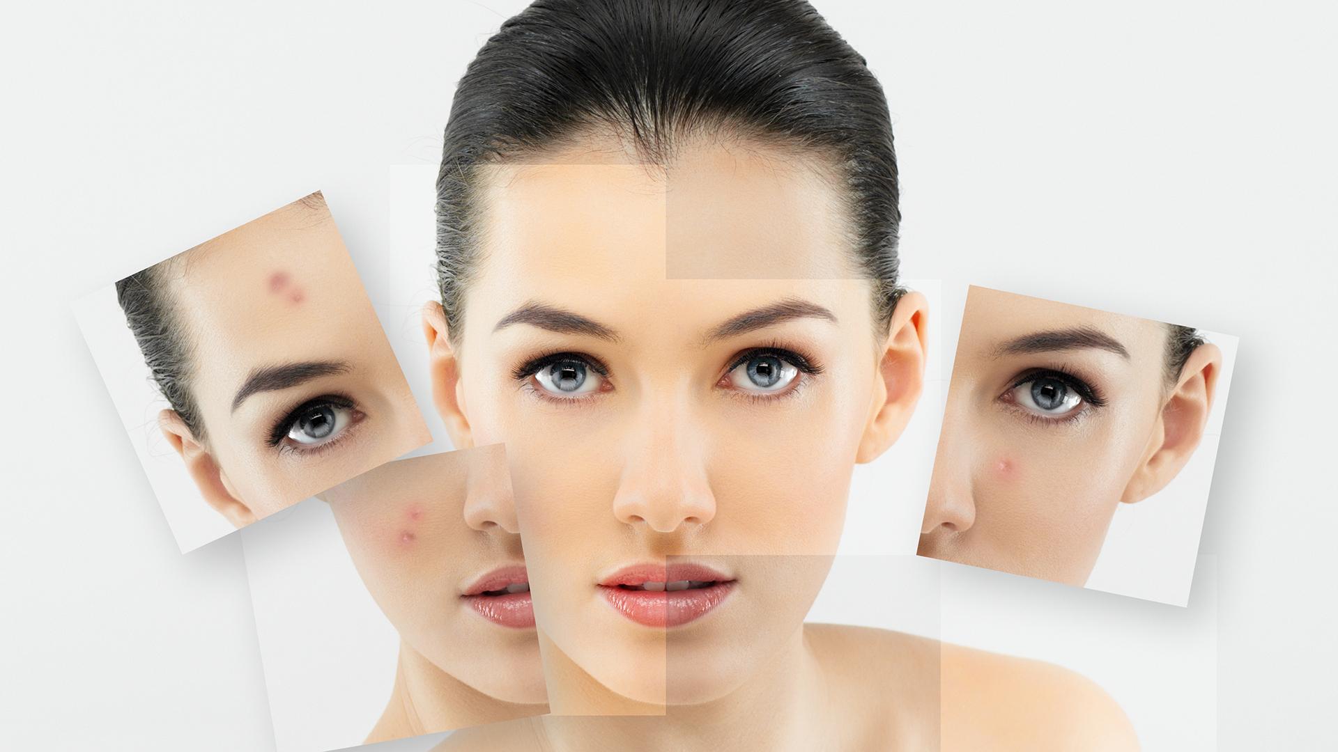 El especialista será quién diagnostique cuál es el mejor plan para cada piel (Shutterstock)