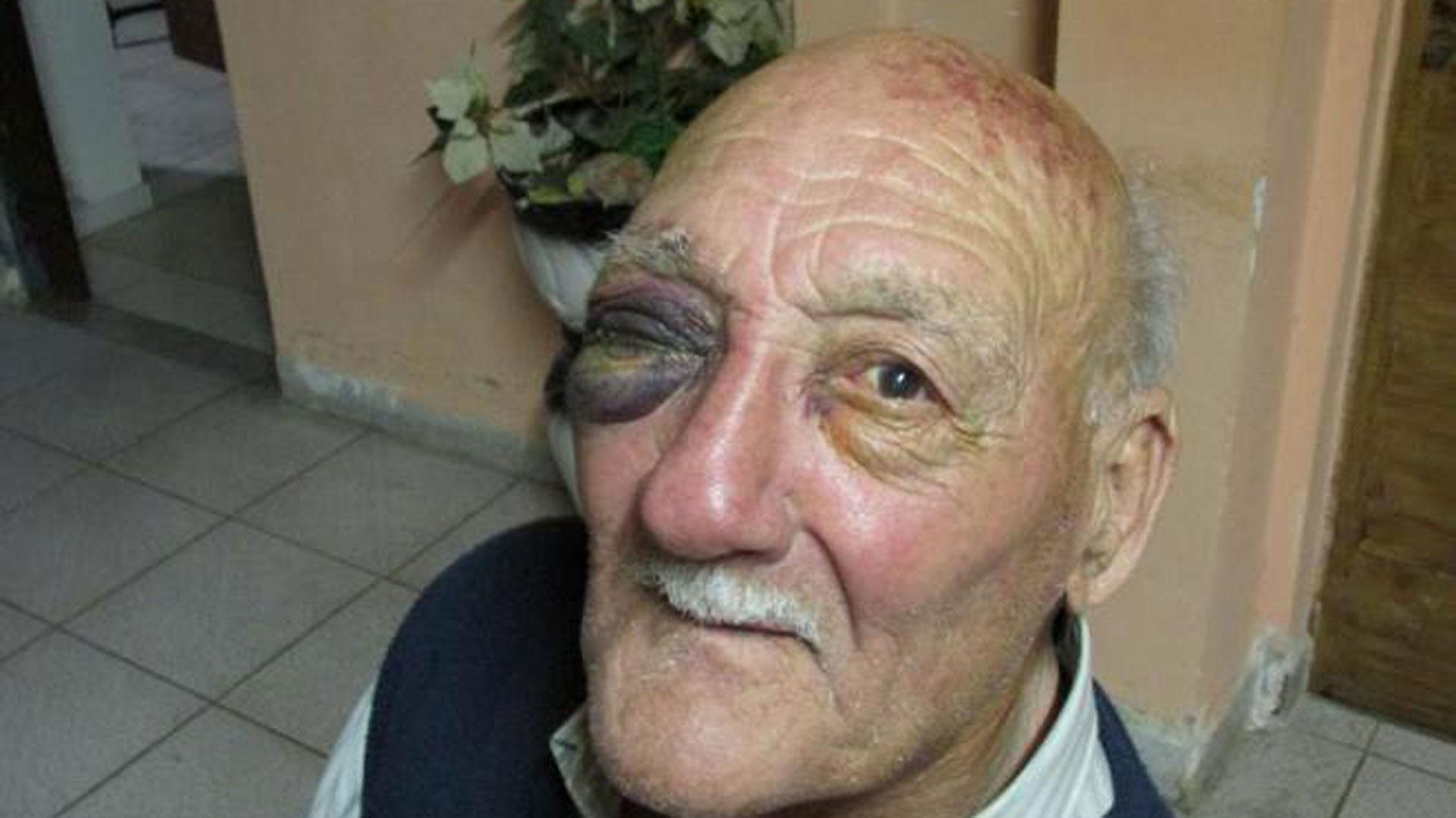 La imagen de uno de los tantos abuelos que son víctimas de la violencia (Cadena Nueve)