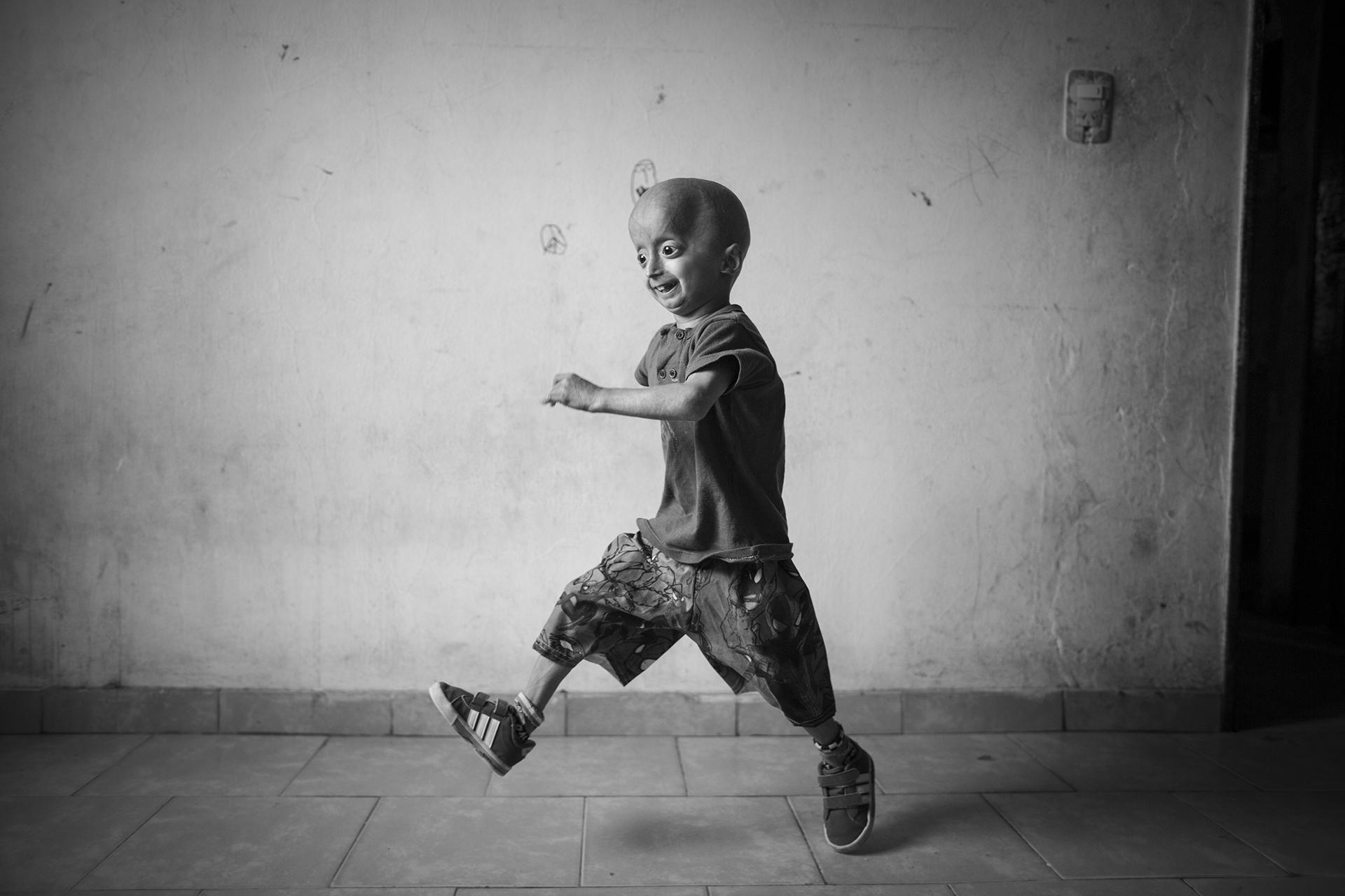 Franco Villavicencio nació con progeria (vejez prematura), una enfermedad que afecta a 300 niños en todo el mundo (Martin Zabala)