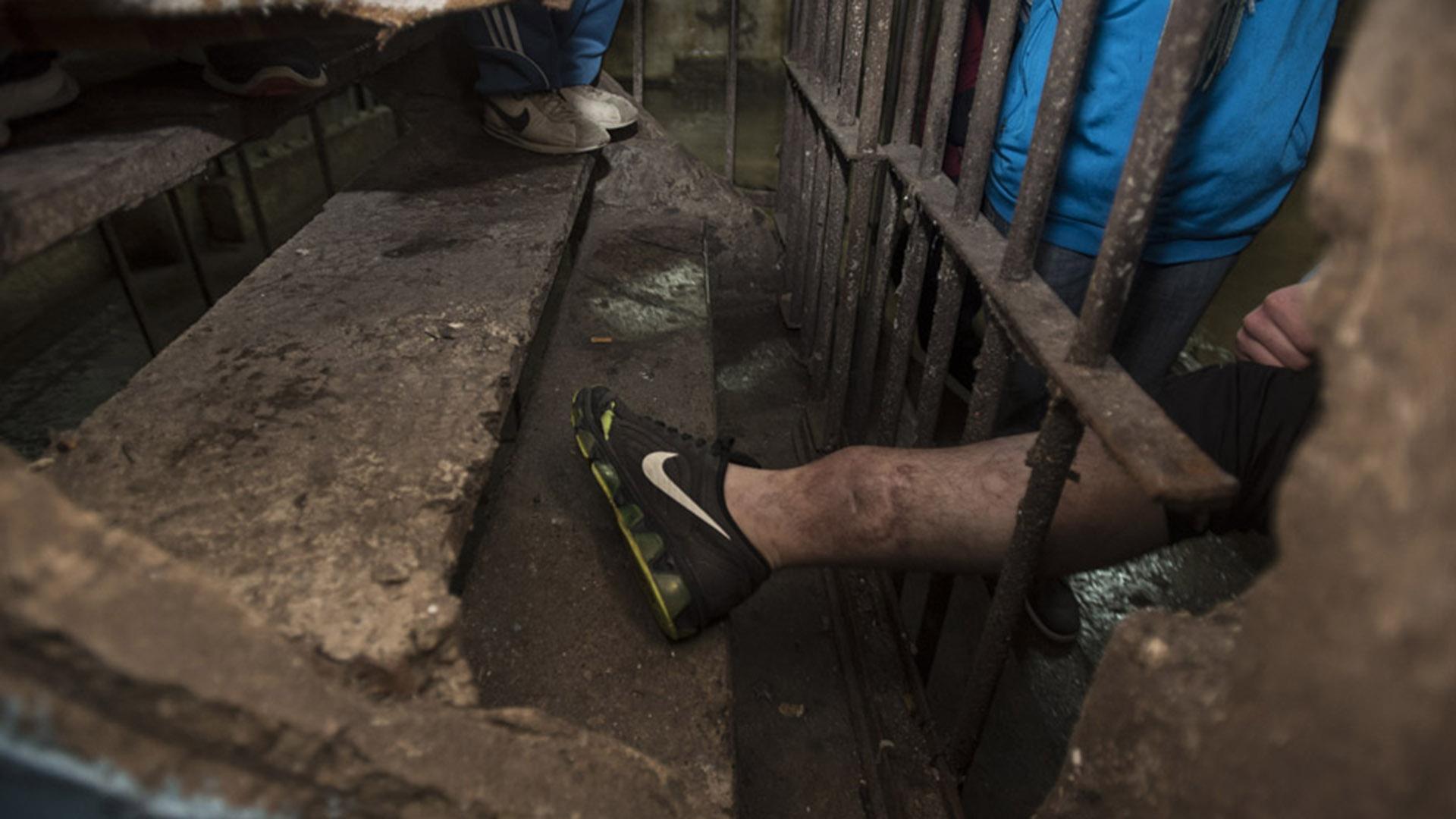 Olmos: un preso muestra su pierna infectada (MPF).