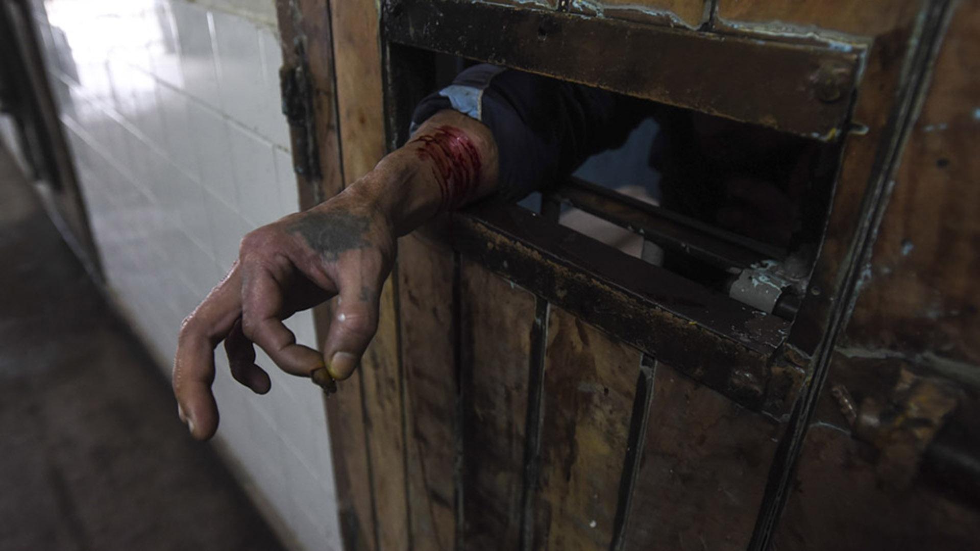 Penal de Olmos, 2016: un preso pide ayuda tras automutilarse (MPF).