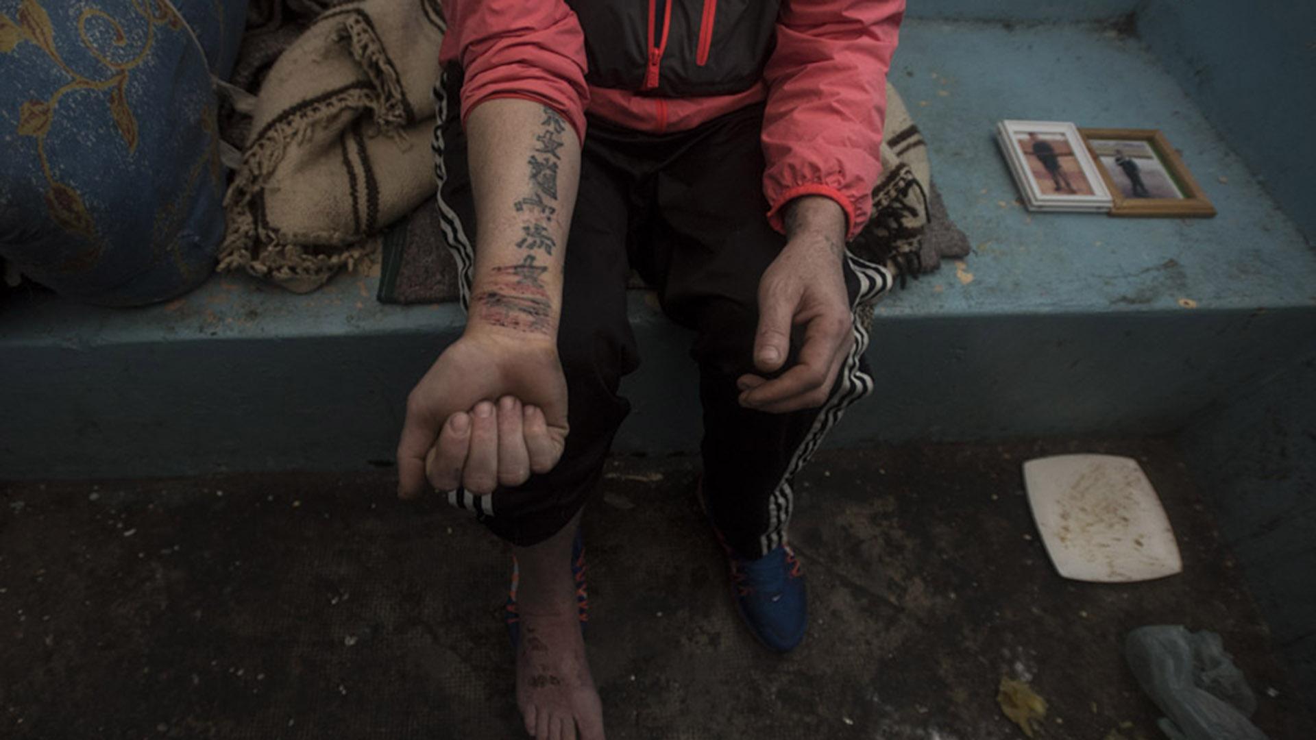 Este detenido se laceró la muñeca para recibir ayuda al oír la visita de la Procuvin.