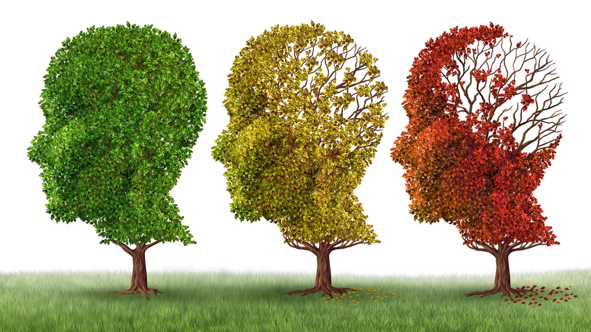 El Alzheimer es la primera causa de demencia en el mundo (Shutterstock)