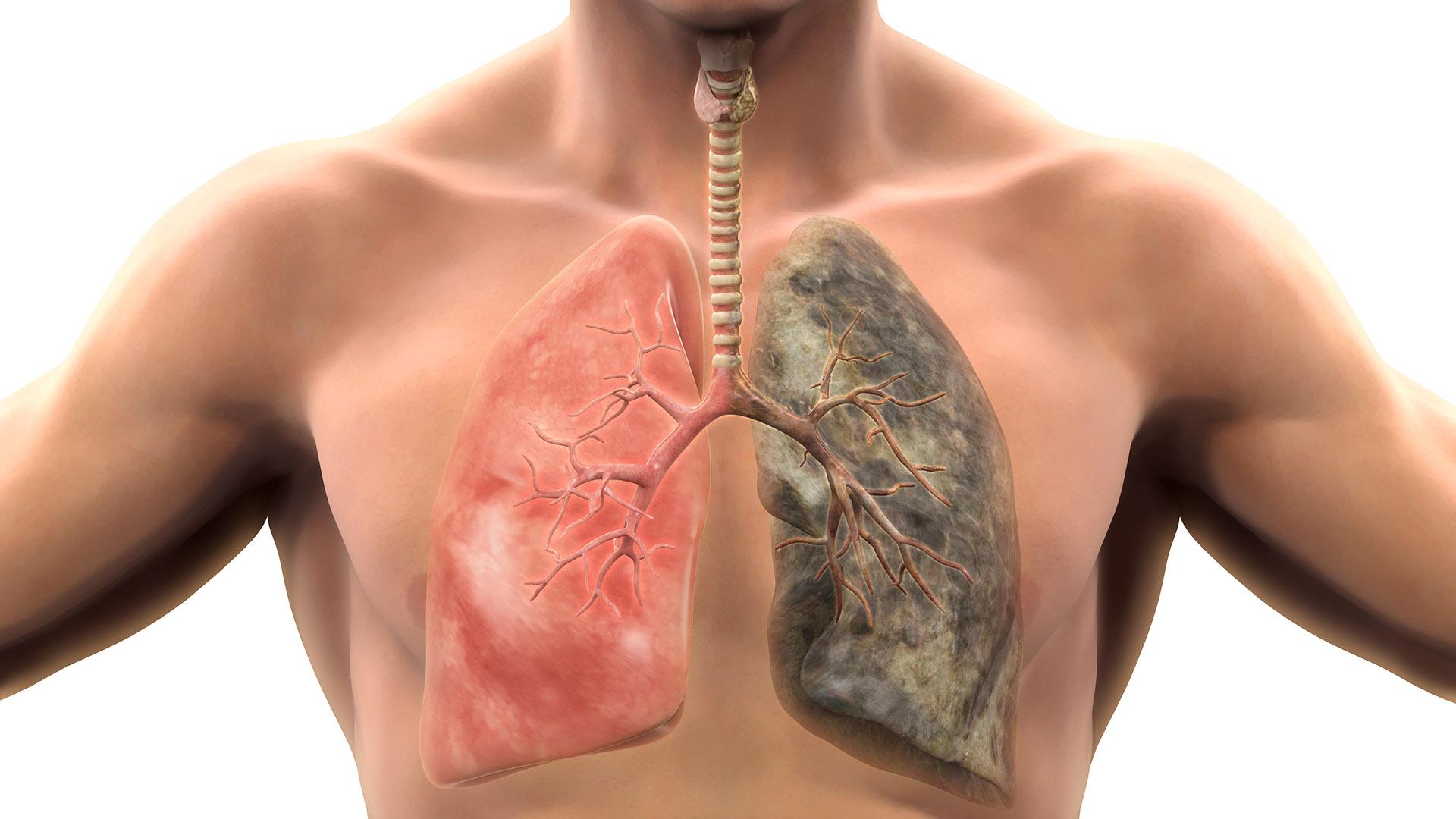 Un pulmón sano y otro bajo lo efectos del tabaco (Shutterstock)
