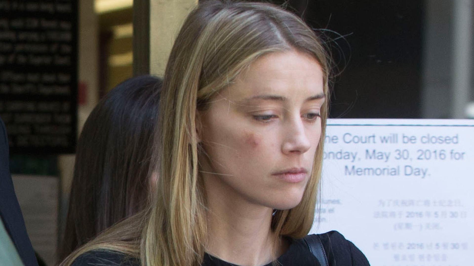 Amber Heard con su rostro golpeado (Grosbygroup)