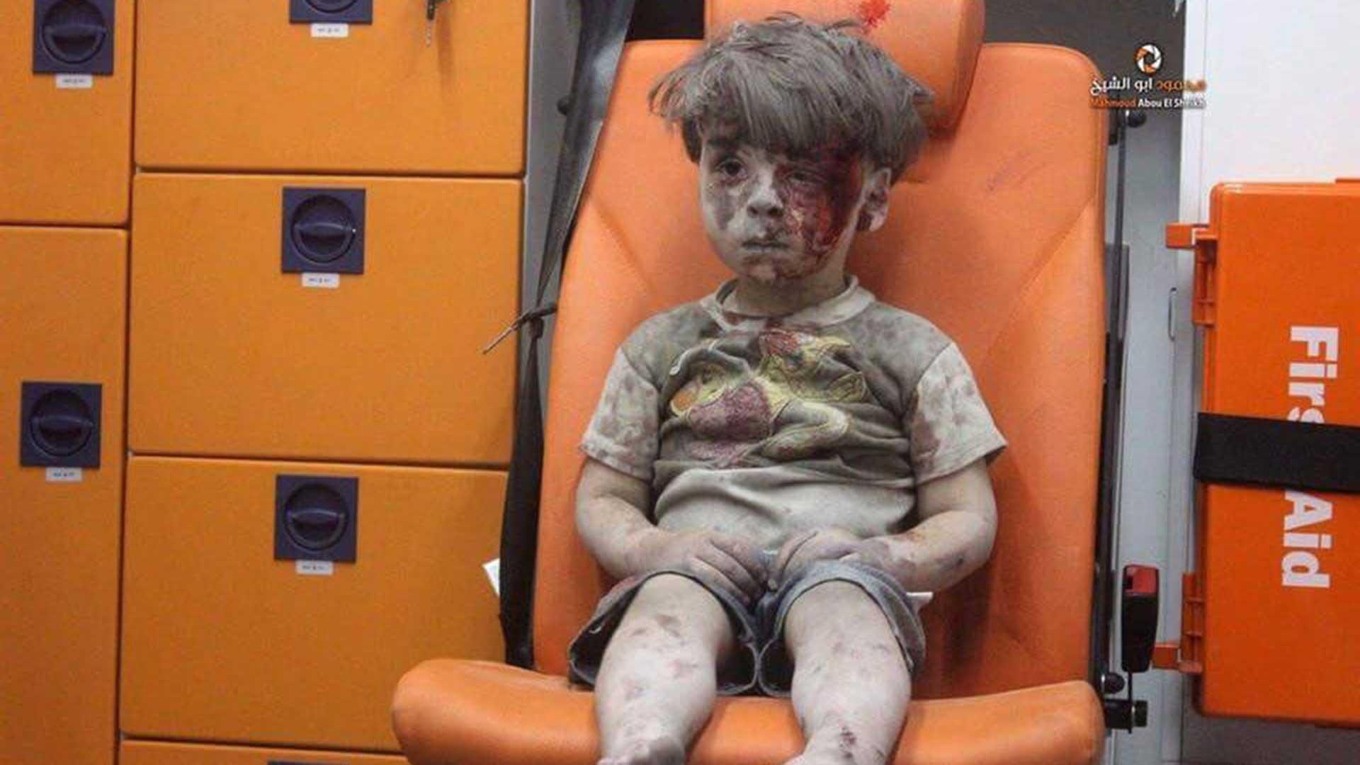 Omran Daqneesh, el niño sirio herido en un ataque aéreo en Alepo, mientras aguarda asistencia médica.