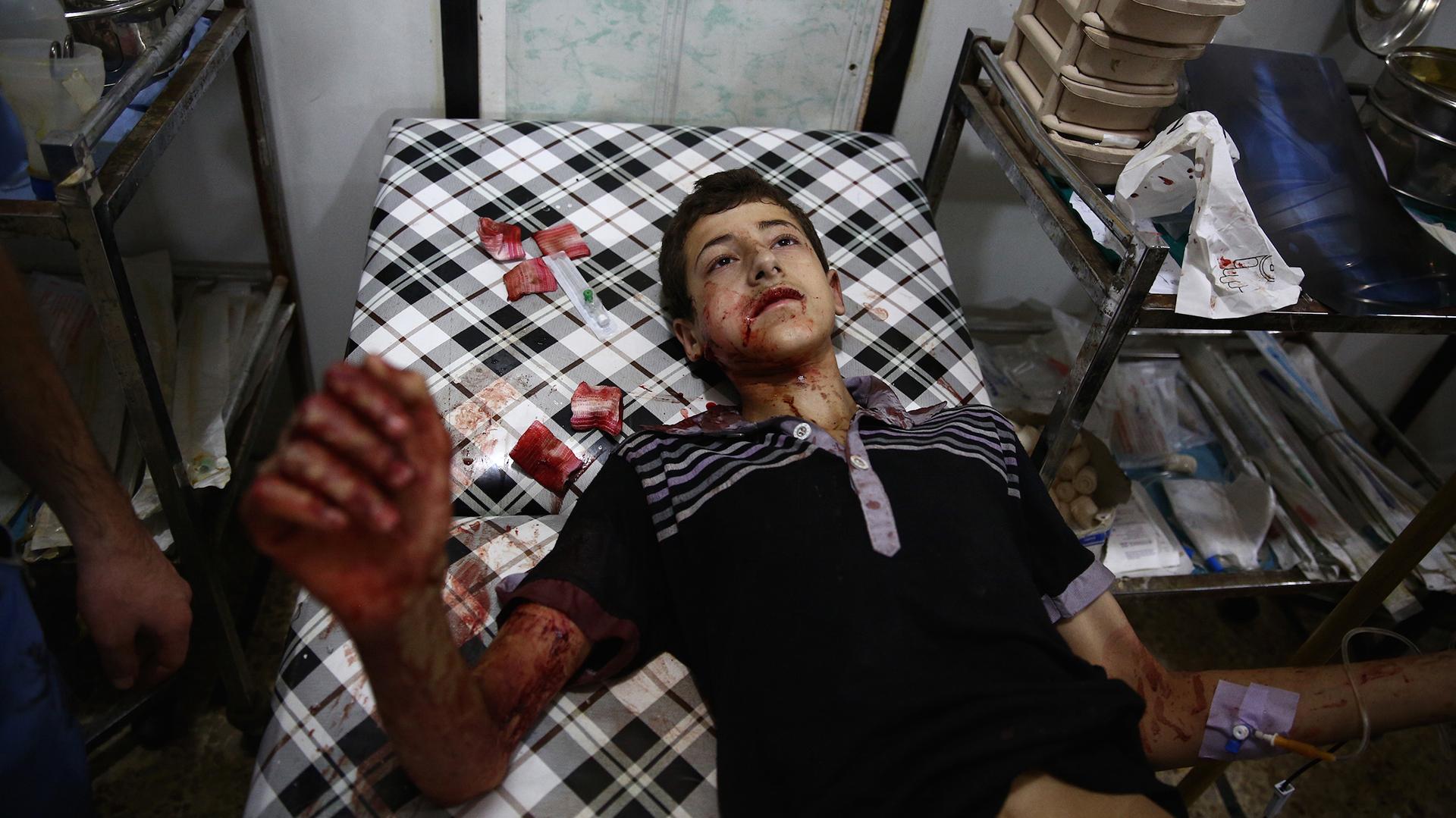 Un joven sirio recibe asistencia médica en Shaffuniya, al este de la capital Damasco(AFP)