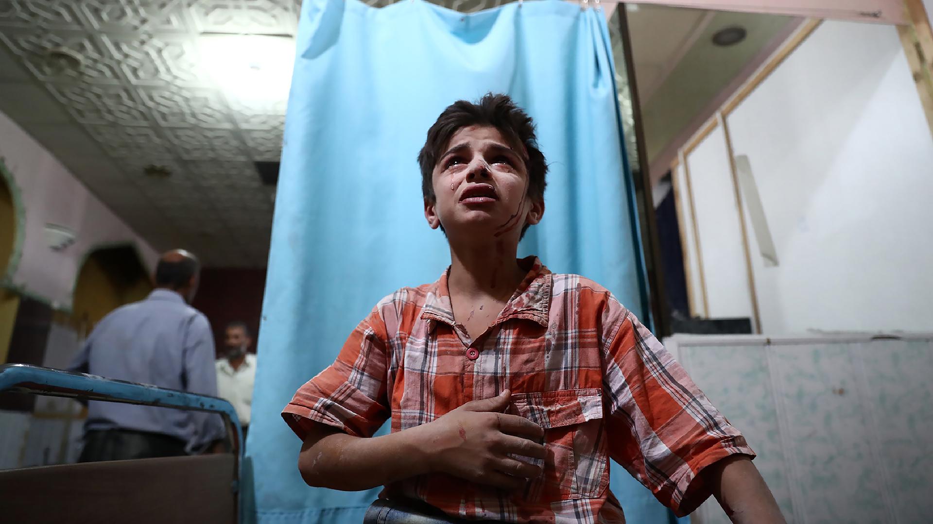 Un niño sirio herido llora mientras espera que lo atiendan en un hospital de campaña después de un ataque aéreo en la ciudad de Douma.(AFP)