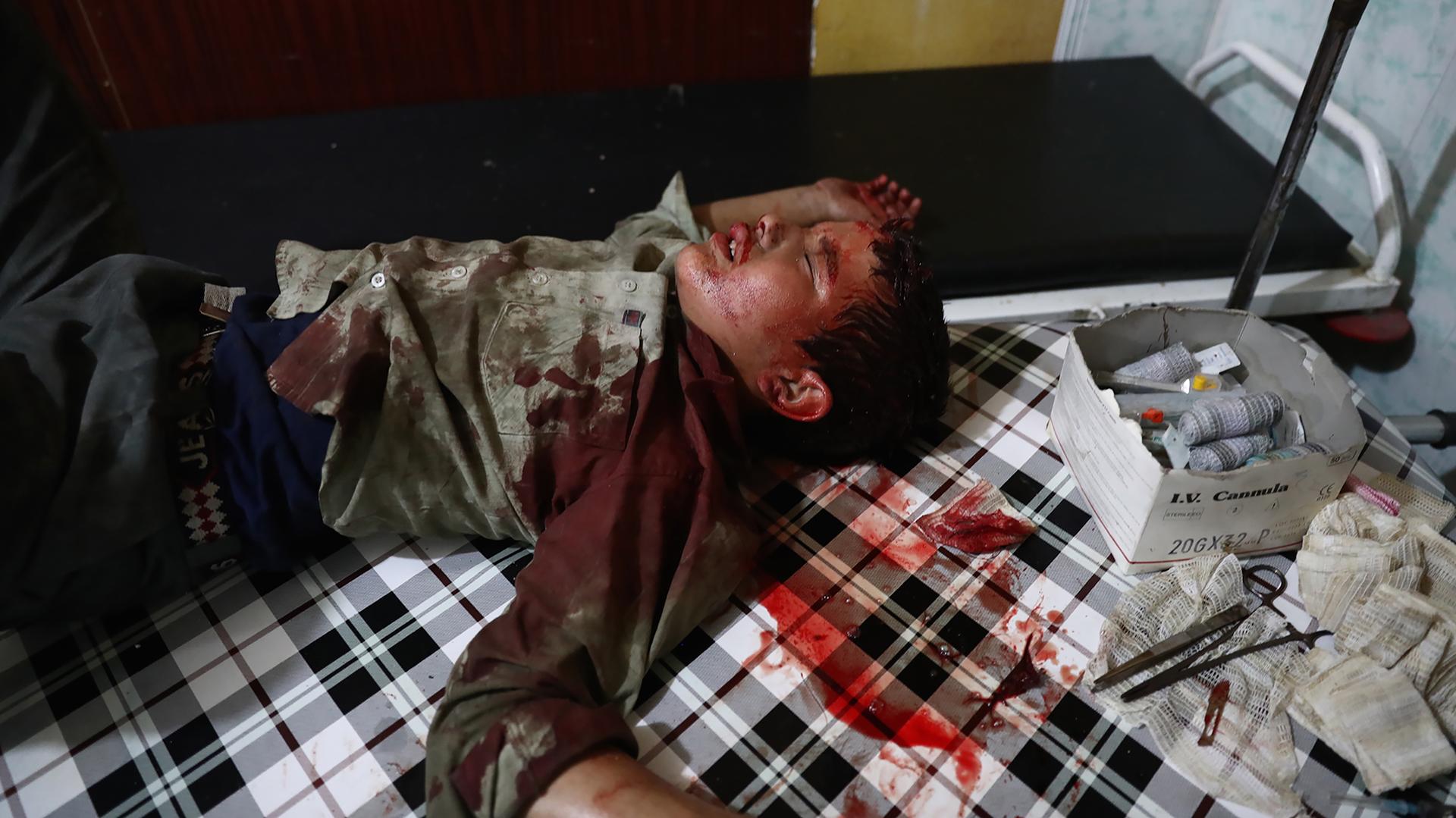 Un niño sirio herido espera ser atendido en un hospital provisorio después de un ataque aéreo en la ciudad siria de Douma/ AFP PHOTO / Abd Doumany