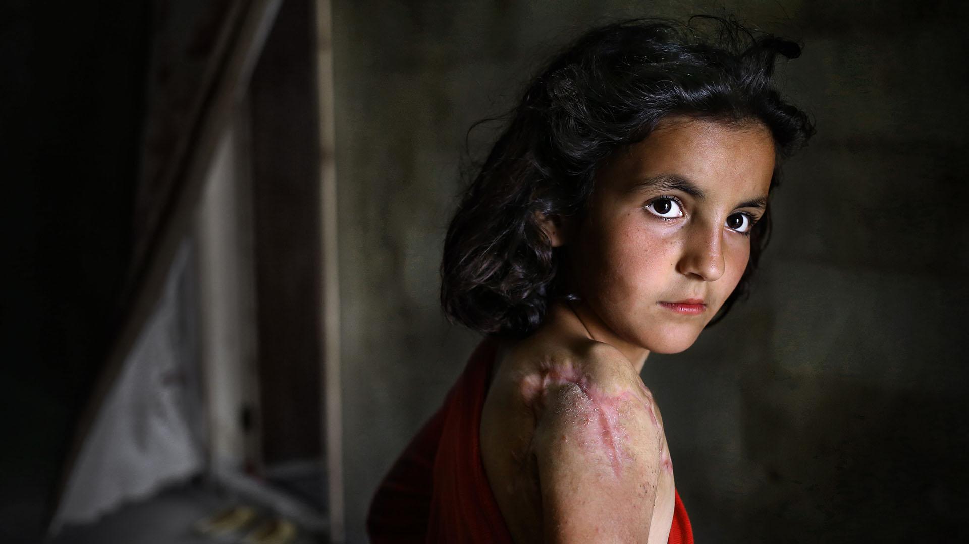 Lujain Hourani, de 11 años, una refugiado siria que perdió parte de su hombro en un ataque aéreo de las fuerzas gubernamentales en la población siria de Zara (AP)