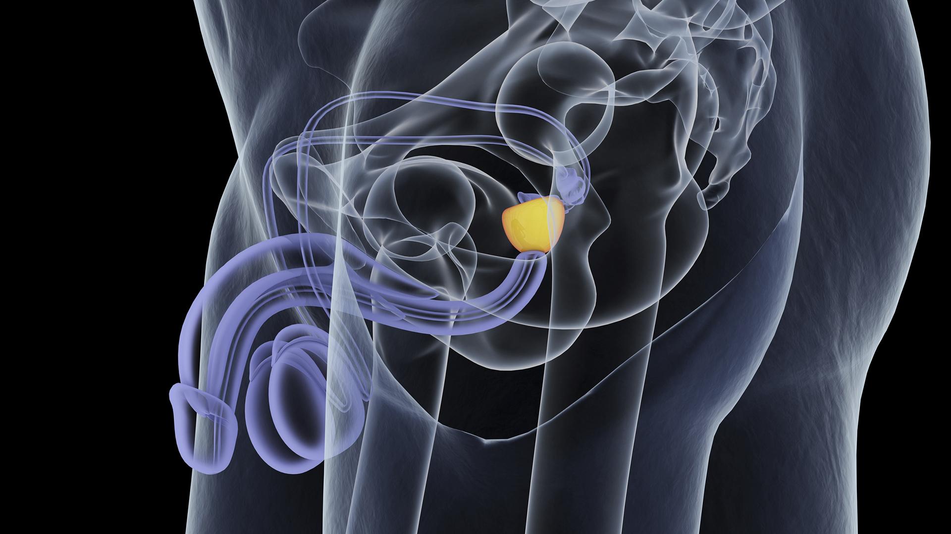 Cáncer de próstata diagnosticado (Getty)