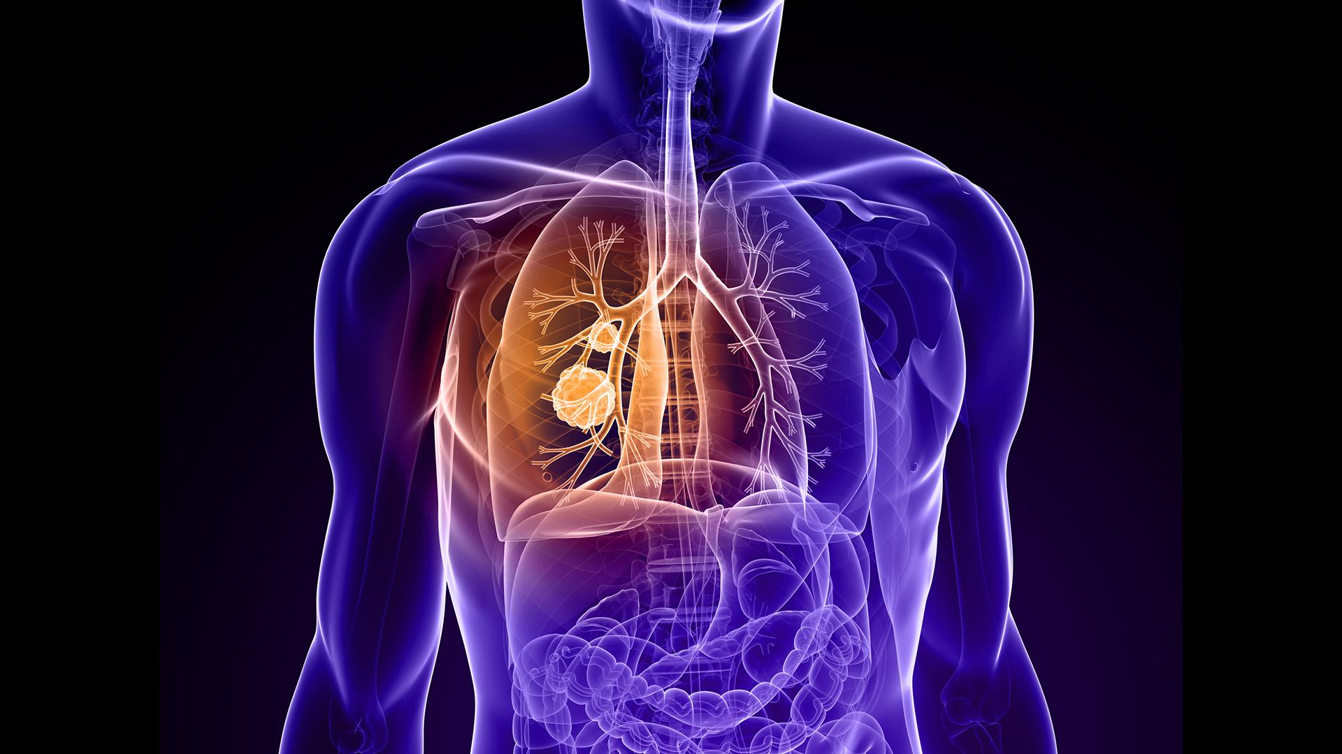 Nuevas drogas para diferentes tipos de cáncer elevan la tasa de sobrevida (iStock)