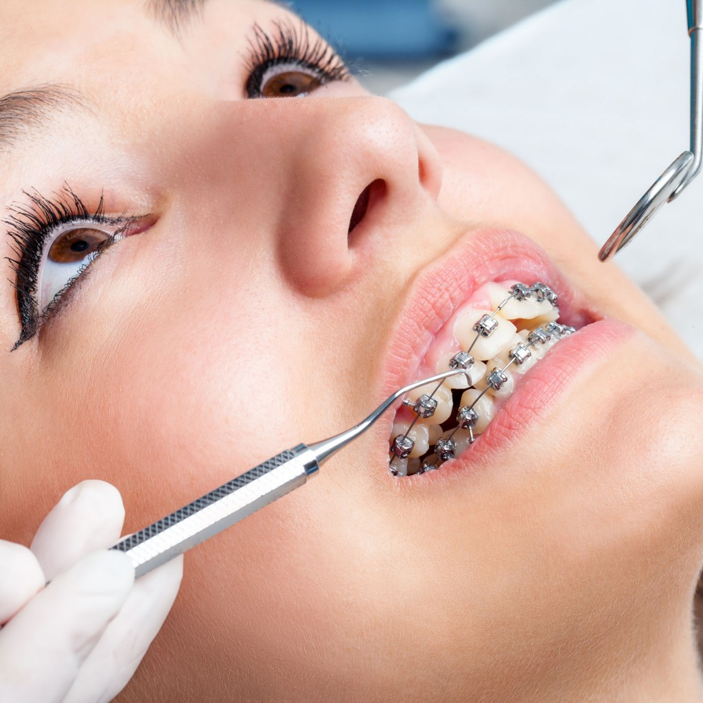 Los ortodoncistas ocupan la octava posición (iStock)