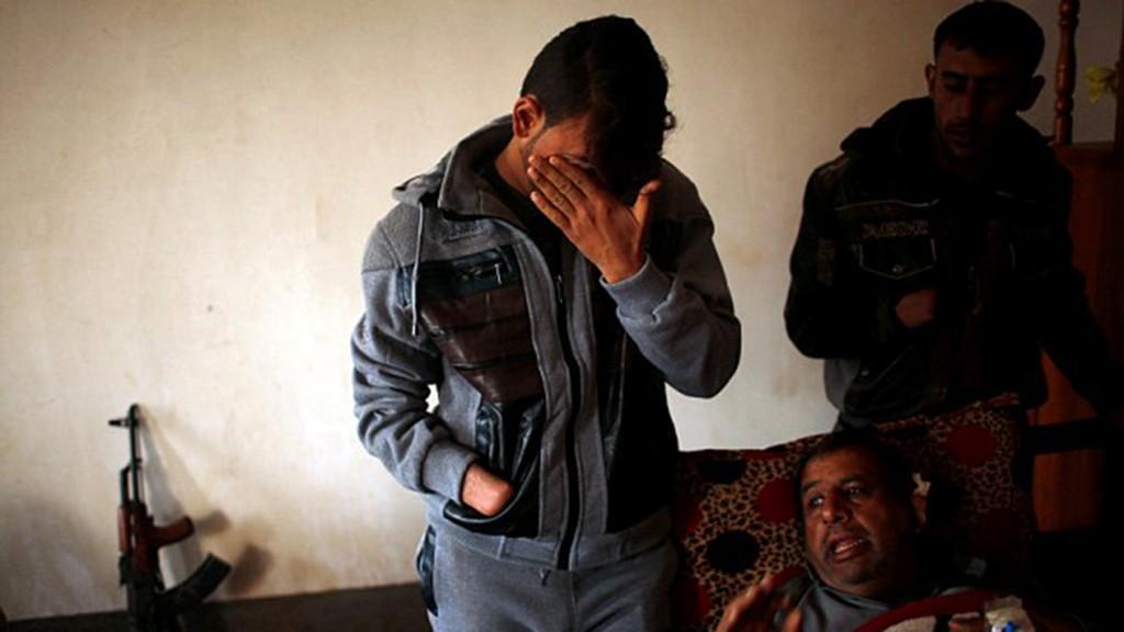 Azad y Mohammed sufrieron la amputación de su mano derecha (Reuters)