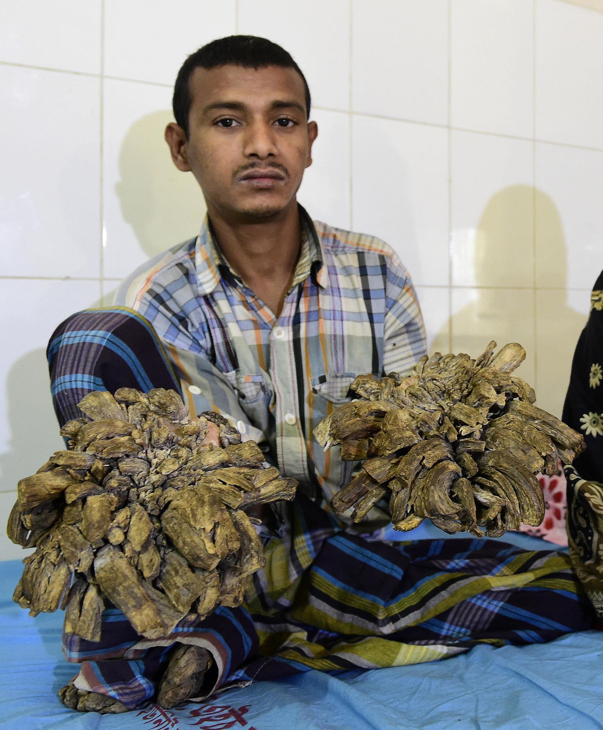 Abul Bajandar , anetes de las 16 operaciones (AFP)