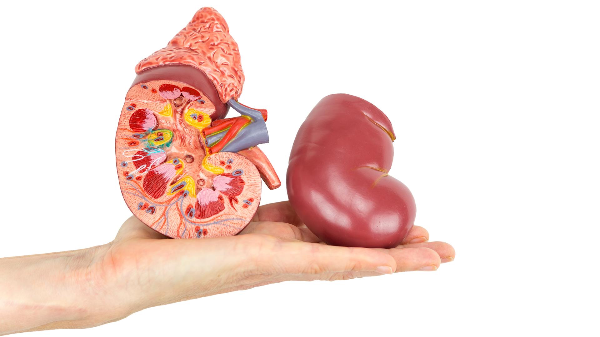 De todas las causas que llevan a la enfermedad renal crónica, la diabetes es una de las causas más frecuentes (iStock)