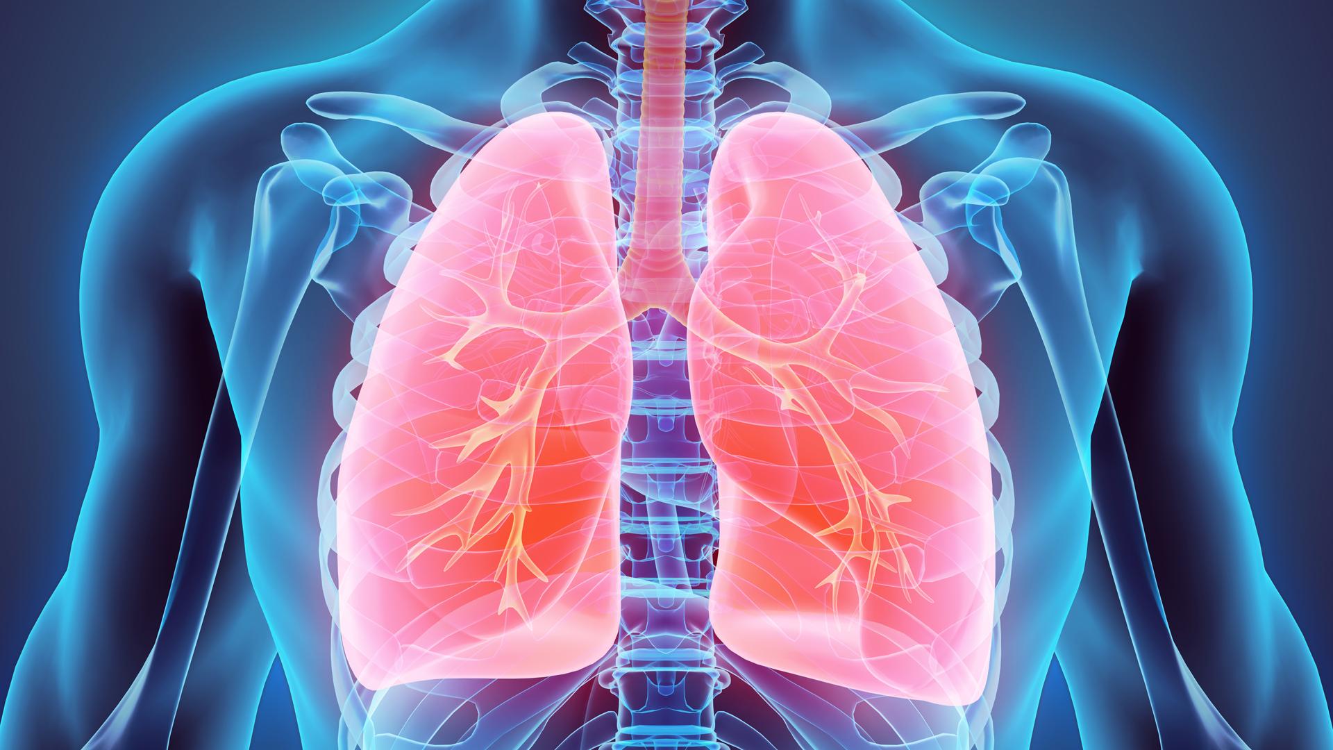 La enfermedad suele confundirse con otros síntomas o enfermedades como el asma o ataques de pánico. (iStock)