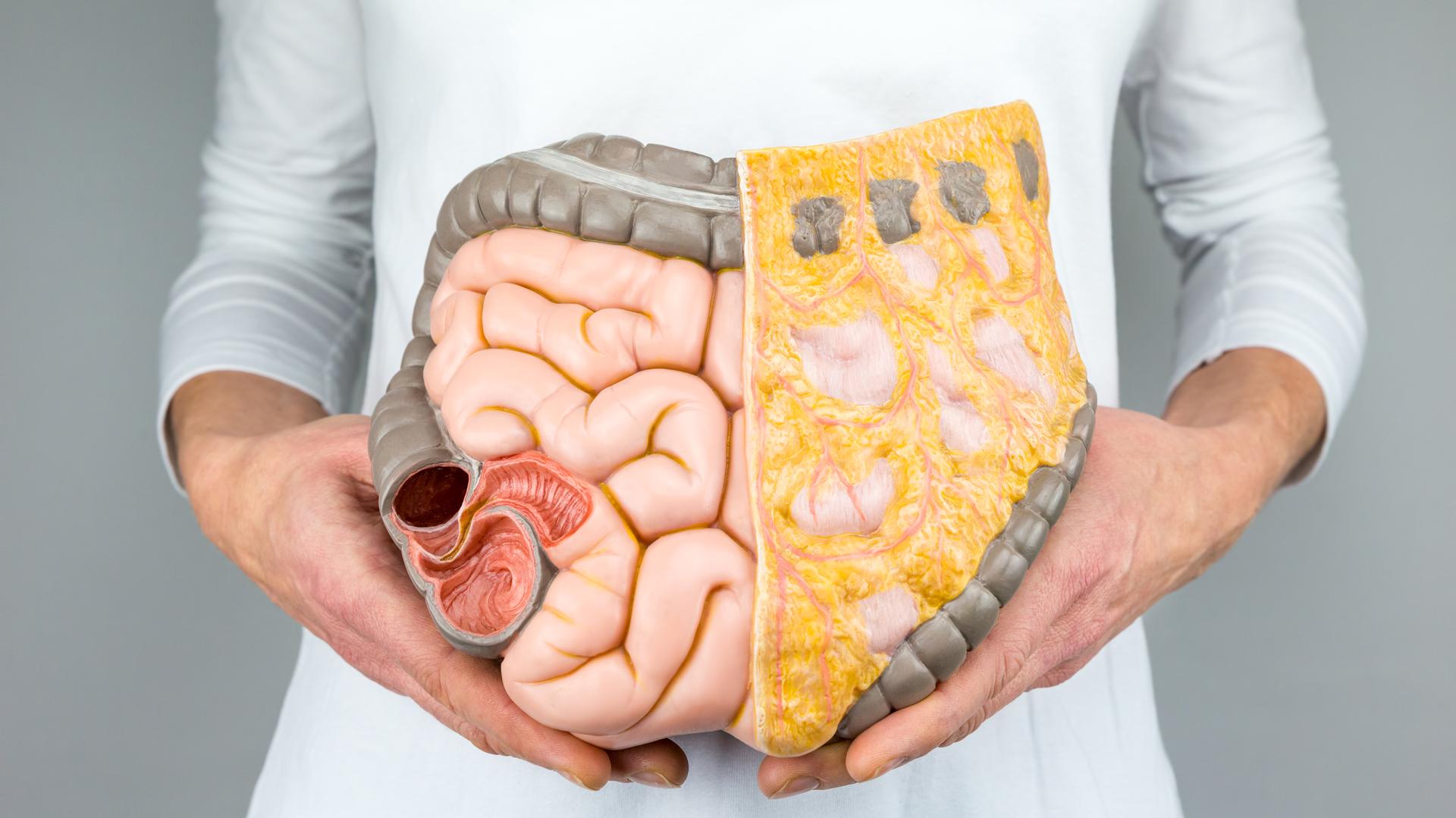 El CCR se trata del tumor maligno que se desarrolla en la última porción del tubo digestivo (iStock)