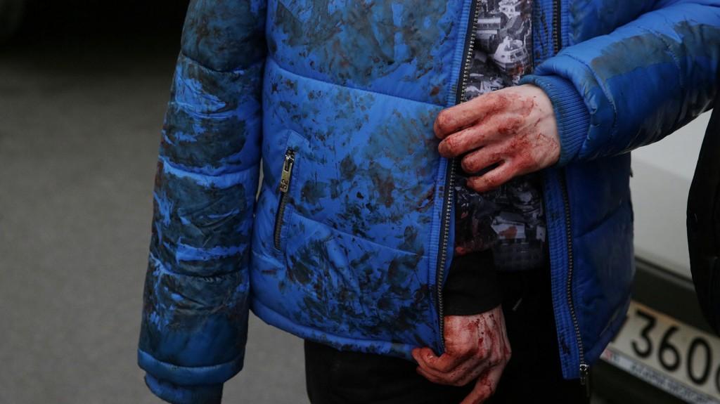 Según fuentes oficiales, 37 de los heridos, entre ellos niños, ya han sido ya ingresados en varios hospitales de la antigua capital zarista con heridas causadas por la metralla y la onda expansiva