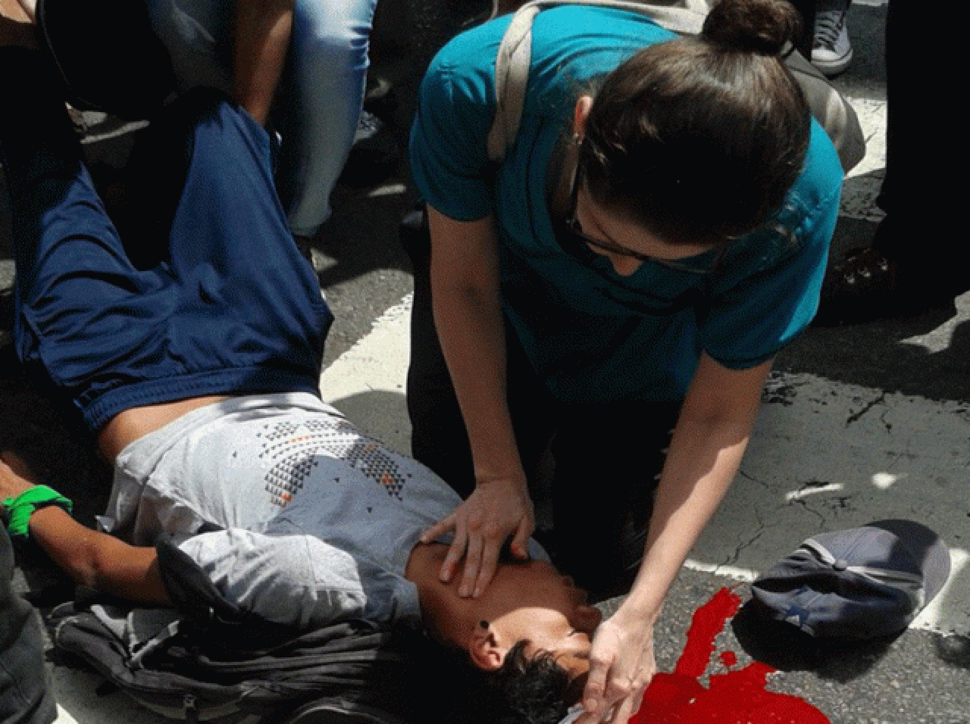 Represion en San Bernardino, donde un joven manifestante fue atacado por los colectivos chavistas