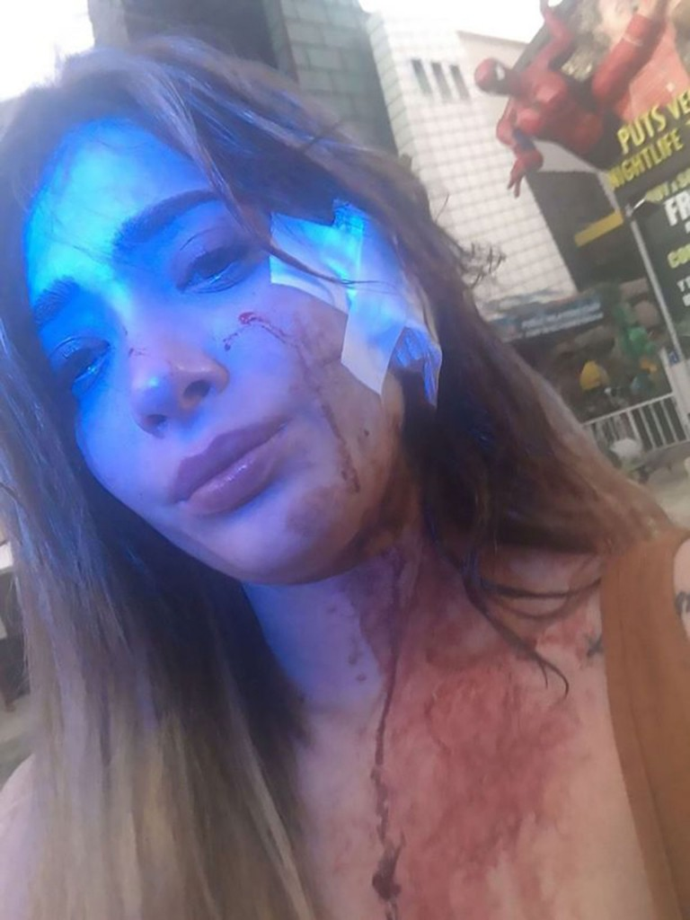 Brenda Zambrano golpeada SF 3