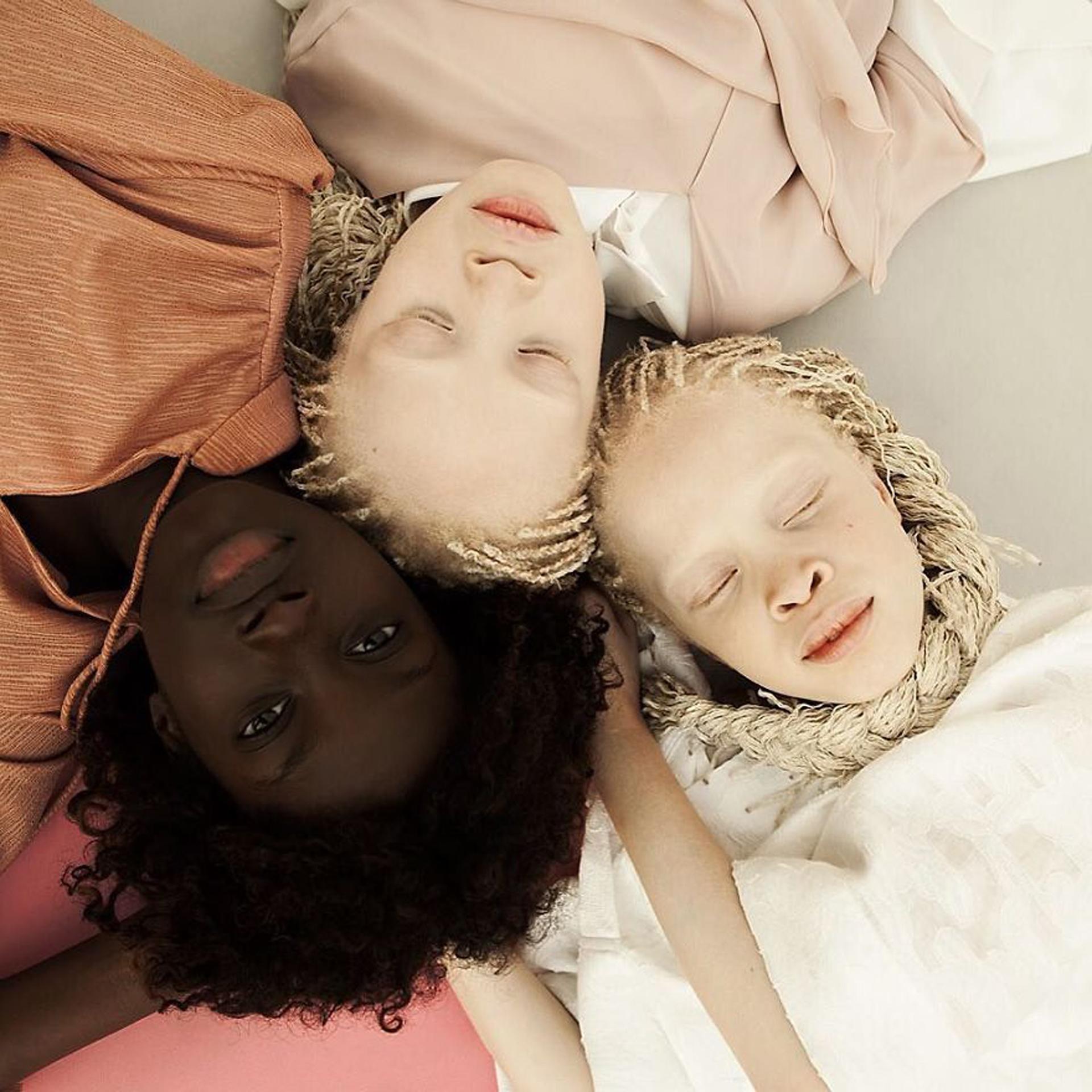 """Las gemelas albinas, suceso de la moda en Brasil: """"Nos encanta ser ..."""