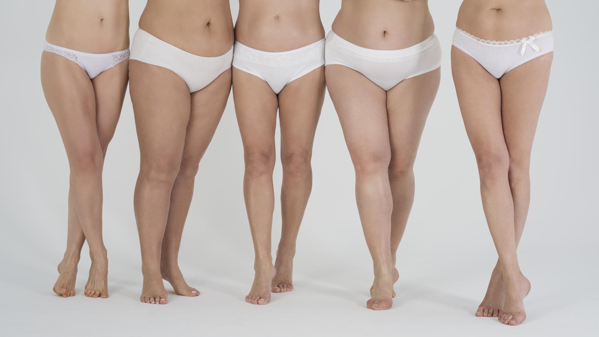 Se trata de una condición crónica en la que la grasa se acumula progresivamente en las extremidades inferiores (iStock)