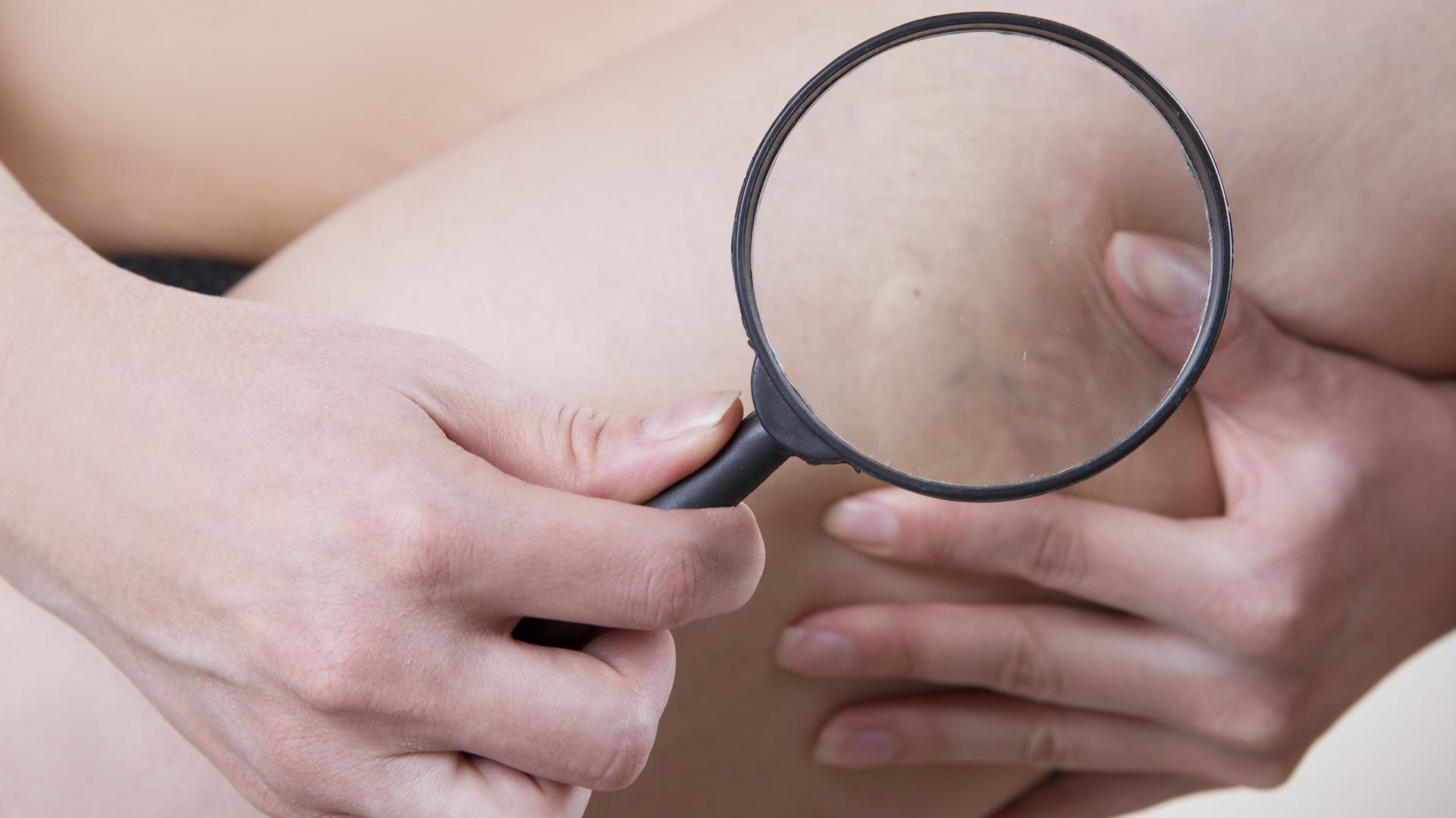 La paciente suele padecer de múltiples telangiectasias en las áreas afectadas y hematomas espontáneos (iStock)