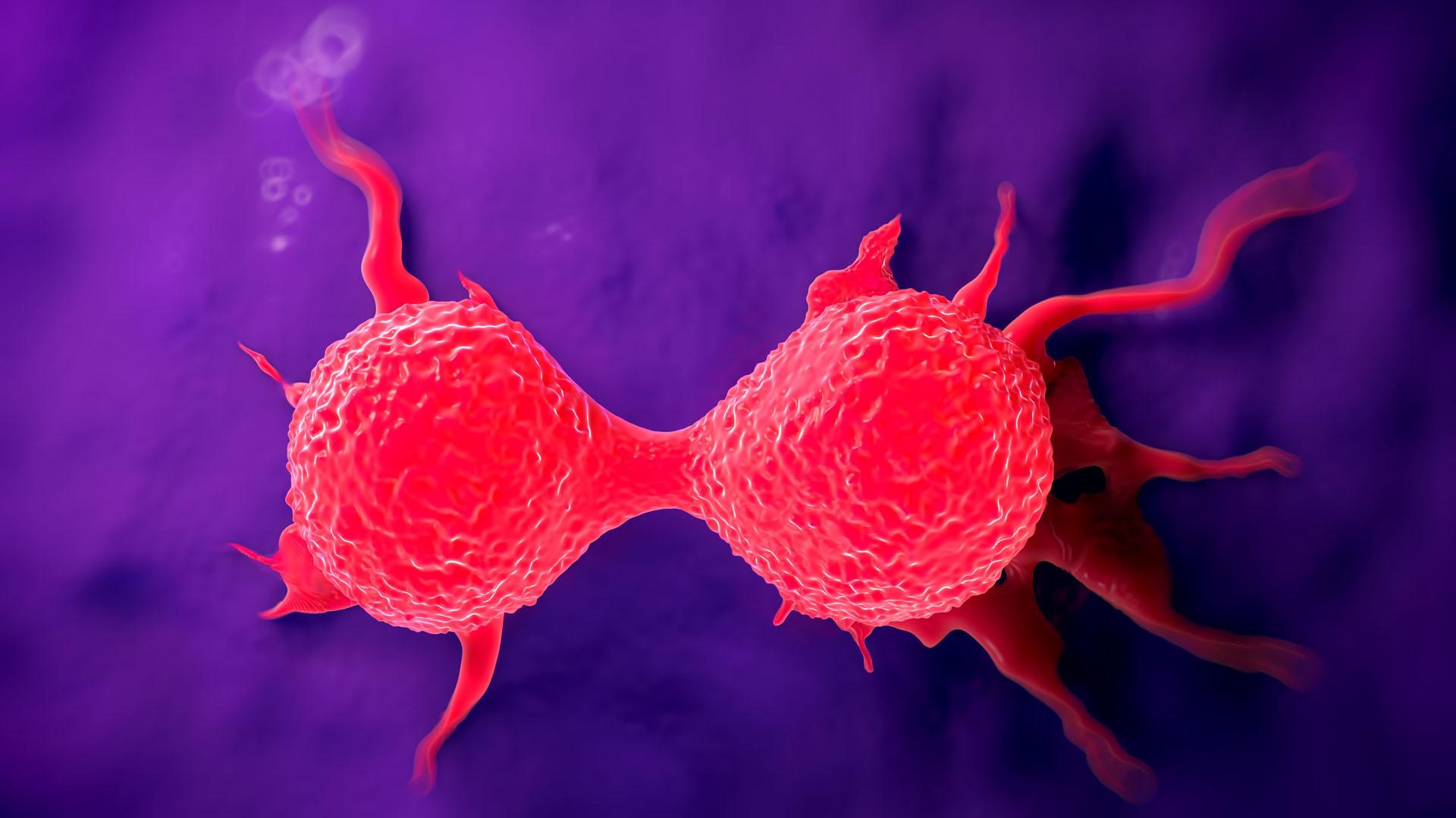 Casi un 18 por ciento del total de todos los cánceres corresponden al de tipo mamario (iStock)