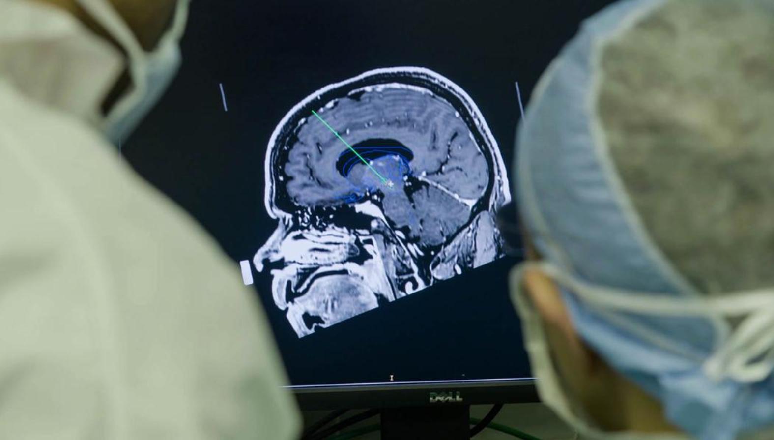 Los doctores de la Universidad Estatal de Ohio en una operación de implante cerebral profundo similar a la que se sometió Ian.