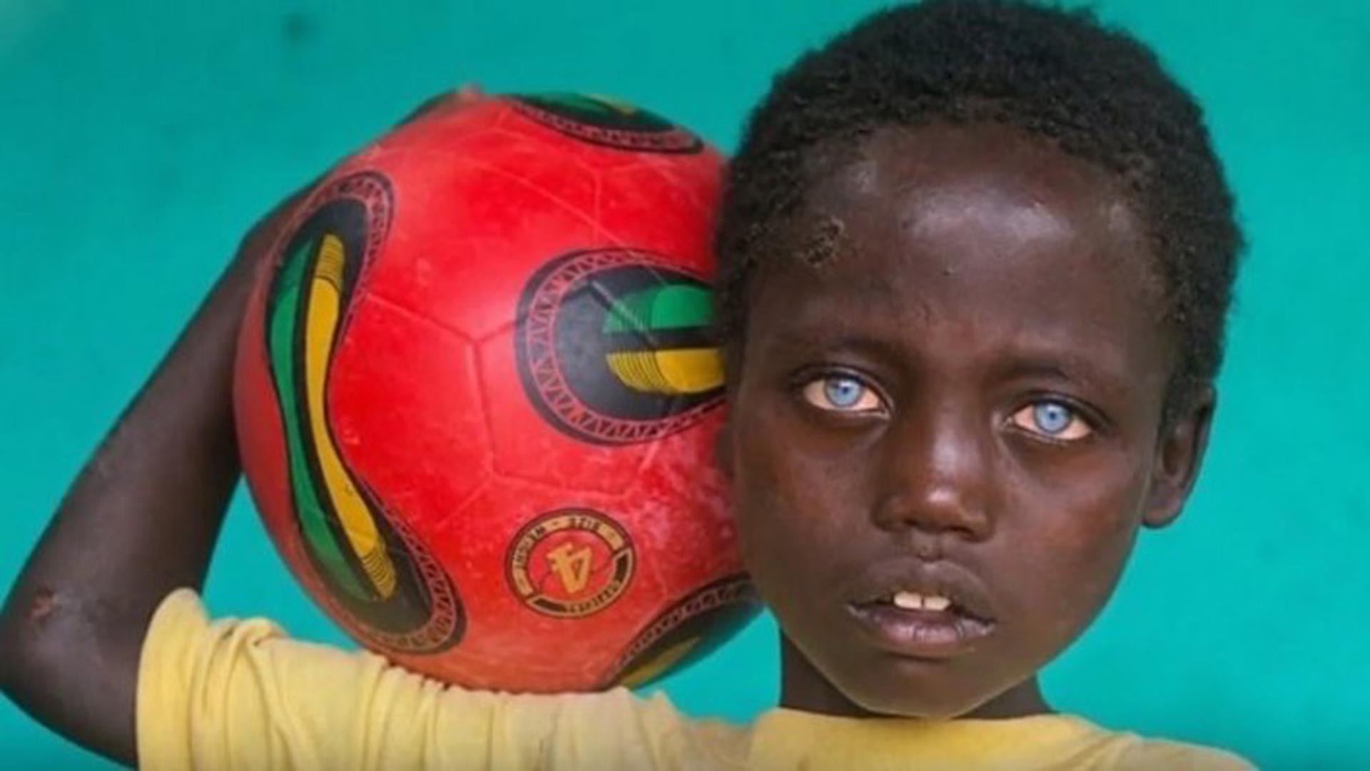 El chico sueña con convertirse en una estrella del fútbol