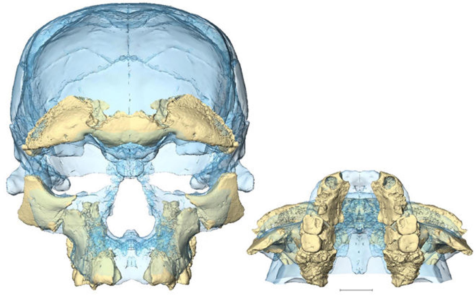 Las piezas encontradas que ayudaron a armar el cráneo