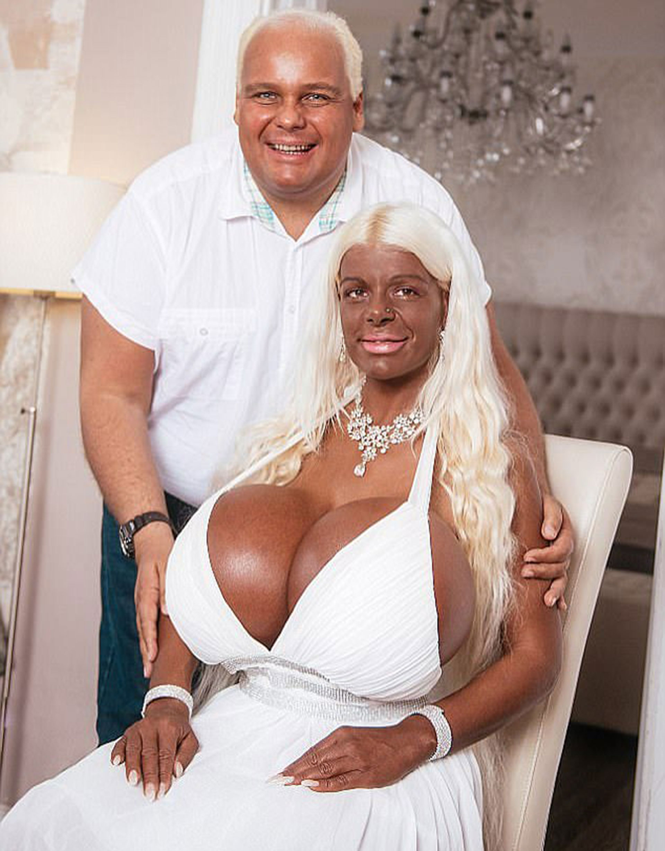 Martina, junto a su novio, Michael, que también se aplicó inyecciones para tostar su piel