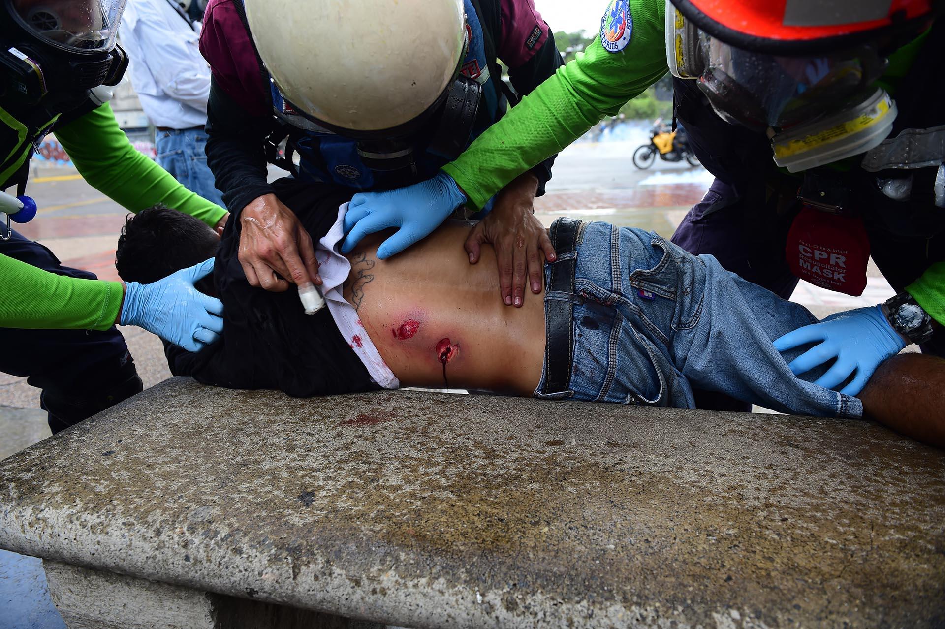Un manifestante fue alcanzado por las balas de las fuerzas de seguridad chavistas (AFP)