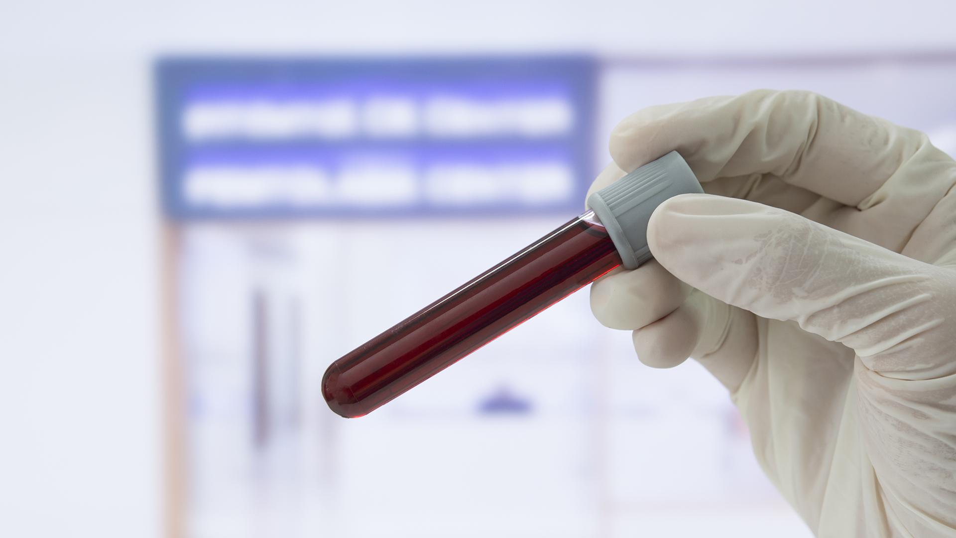 Las nuevas terapias biológicas actúa uniéndose a la proteína CD38, presente en las células malignas del mieloma (iStock)